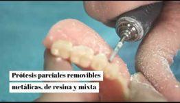 FORMACIÓN DE PRÓTESIS DENTALES: TEMARIO Y LAS SALIDAS PROFESIONALES